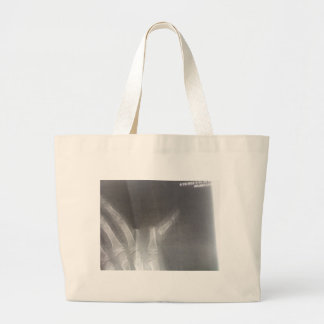 Xray Large Tote Bag