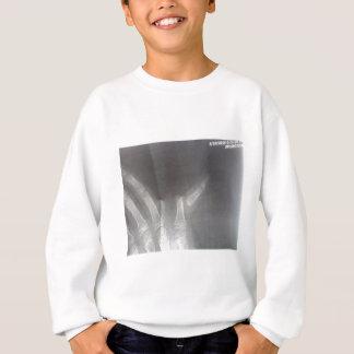 Xray Sweatshirt