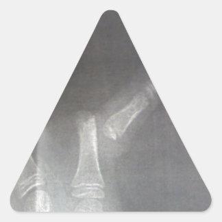 Xray Triangle Sticker