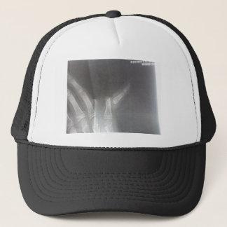 Xray Trucker Hat